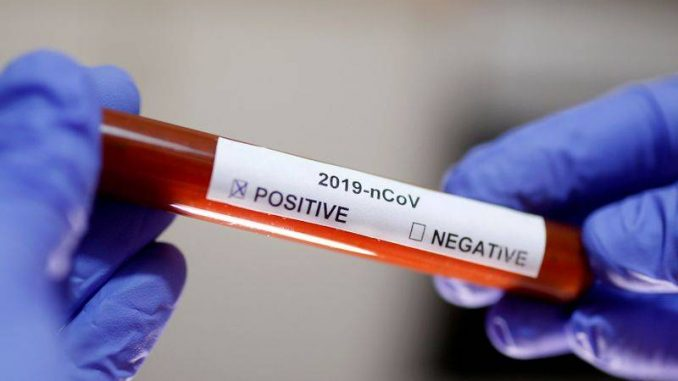 confirmed coronavirus cases in South Africa so far is 3034 – with deaths up to 52